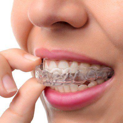 niewidoczne-nakladki-ortodontyczne-ktore-zalozyl-stomatolog-ortodonta-w-gabinecie-kliniki-stomatologicznej-w-poznaniu
