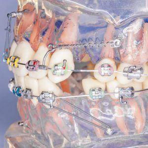 implant-ortodontyczny-pomagajacy-w-leczeniu-ortodontycznym-zakladany-jest-przez-stomatologa-ortodonte-w-gabinecie-kliniki-stomatologicznej-w-poznaniu